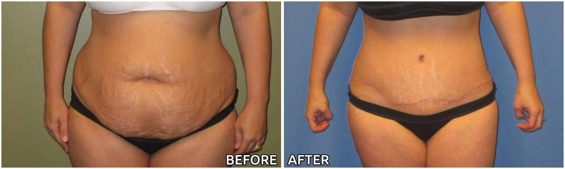 abdominoplasty6