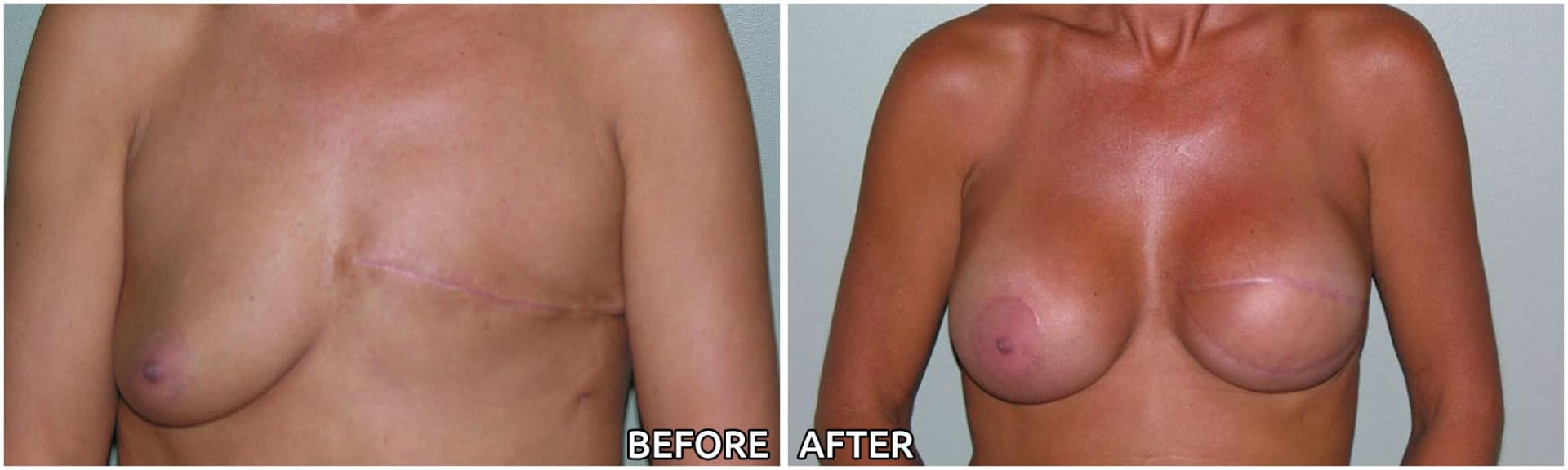 breast-reconstruction10