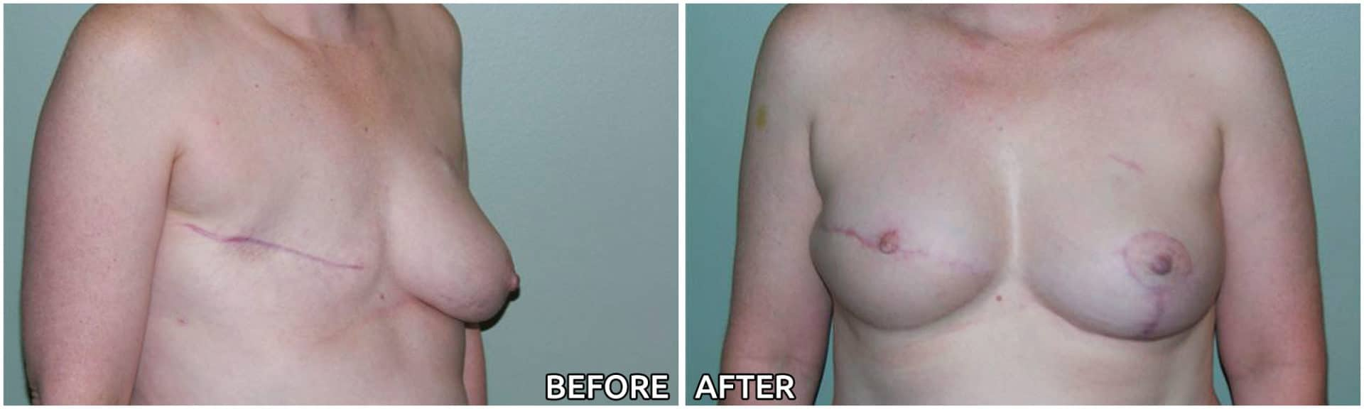 breast-reconstruction11