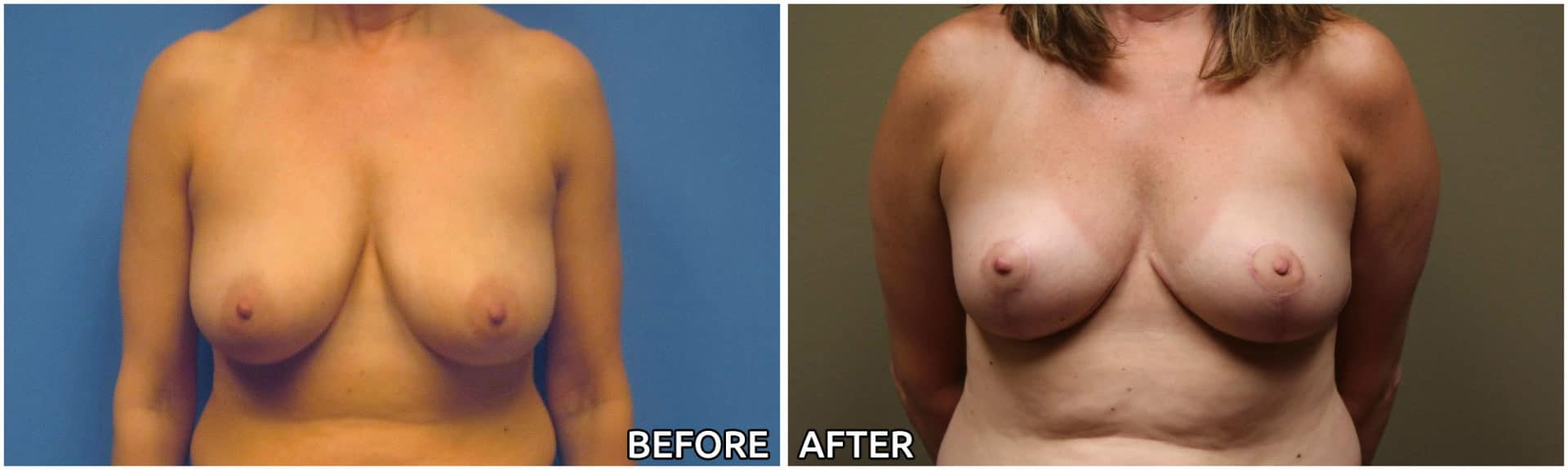breast-reconstruction15