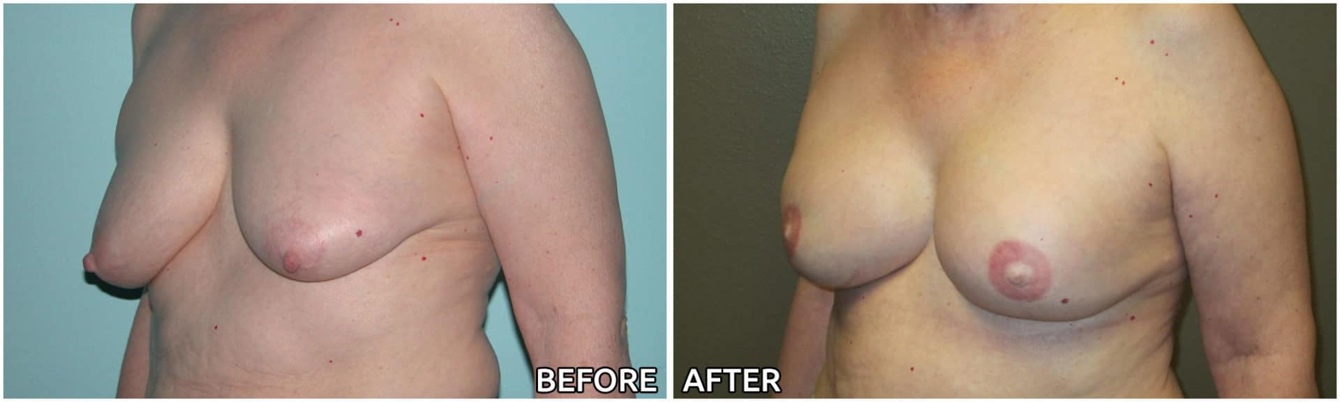 breast-reconstruction2