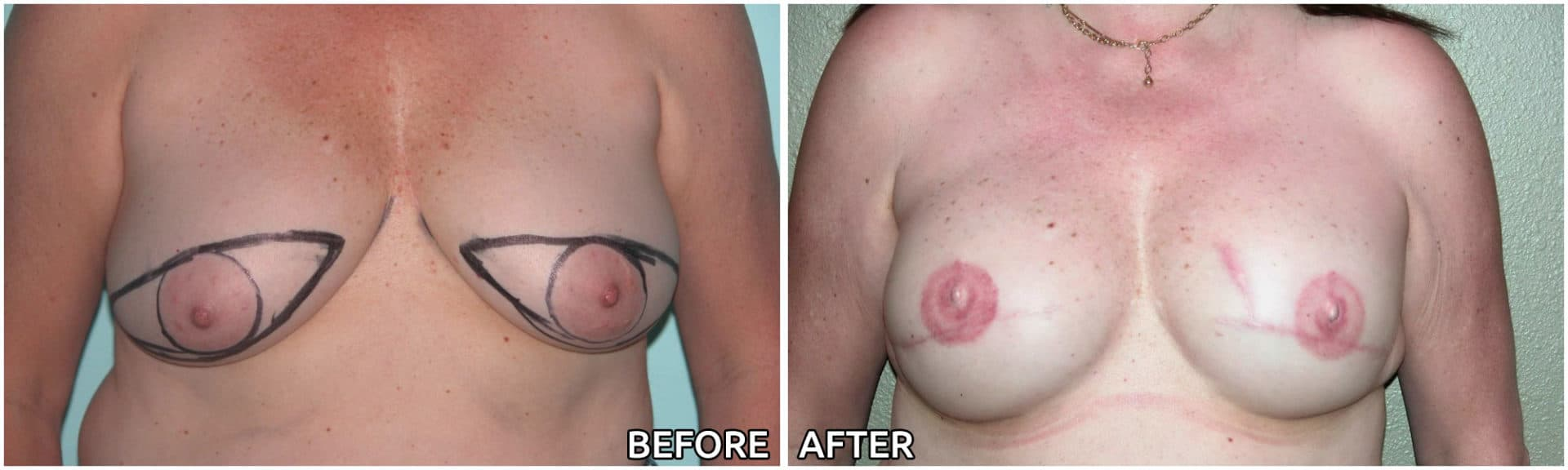 breast-reconstruction3