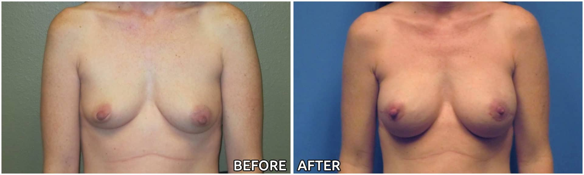 breast-reconstruction4