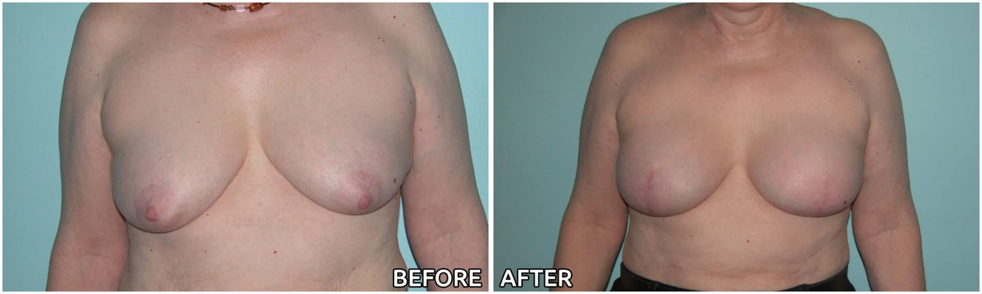 breast-reconstruction5