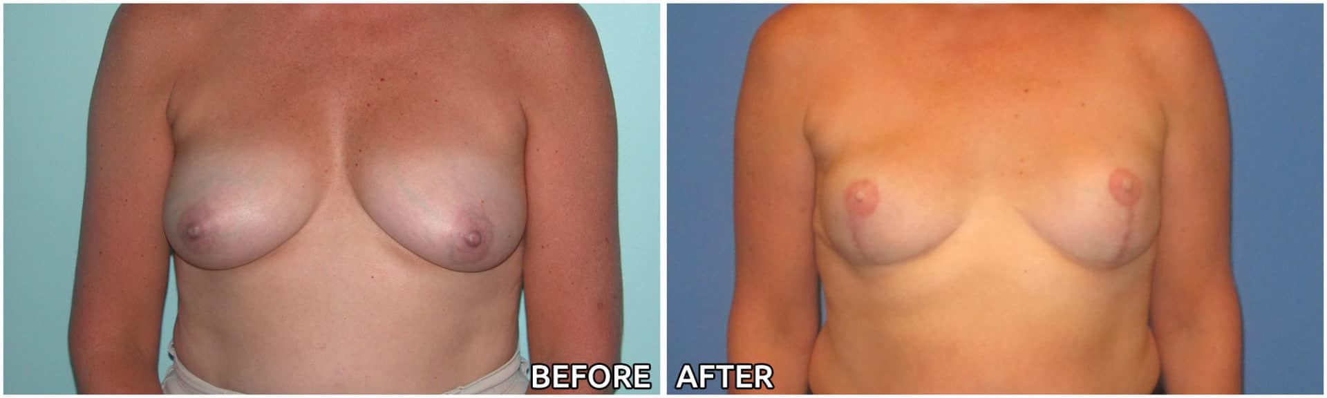 breast-reconstruction6
