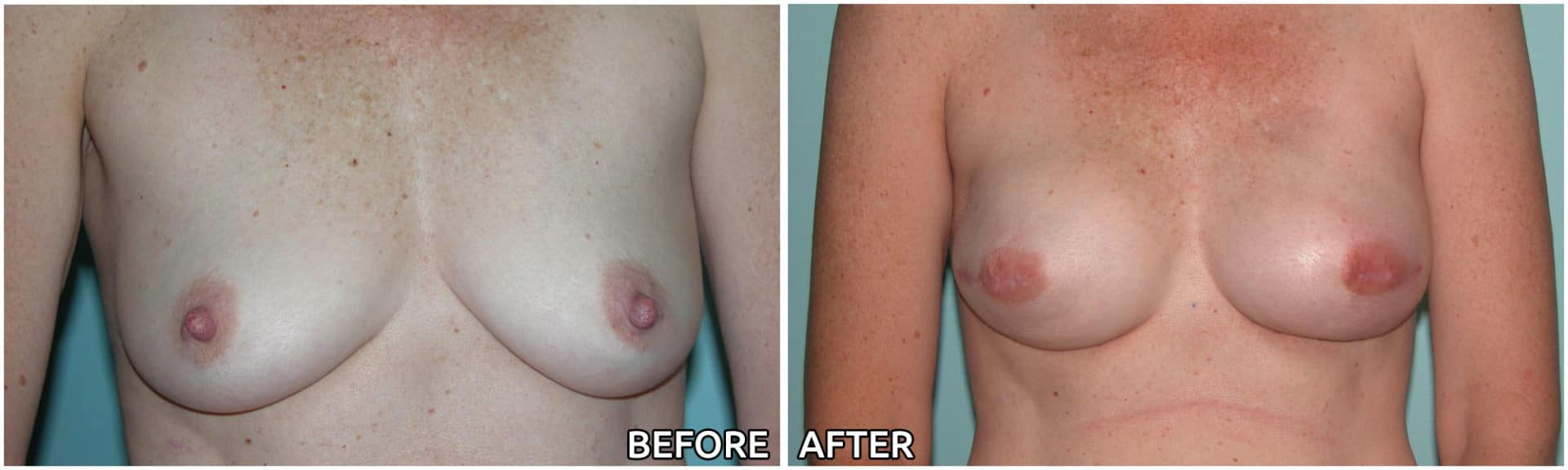 breast-reconstruction8