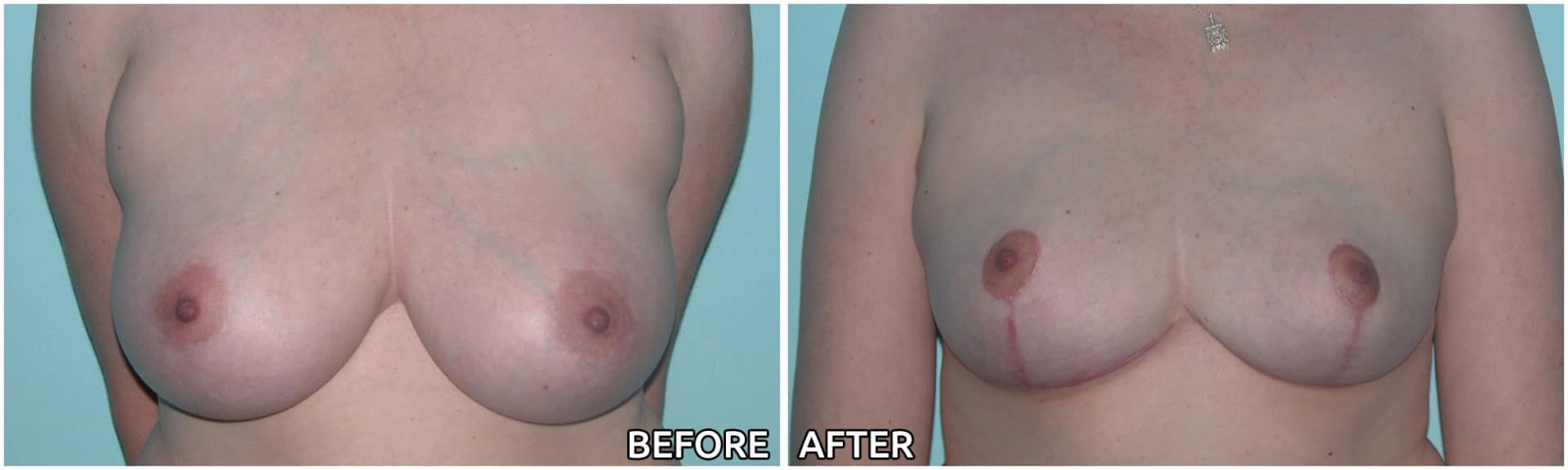 breast-reduction12