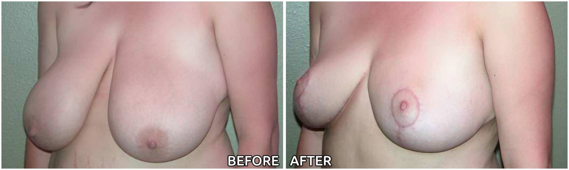 breast-reduction8