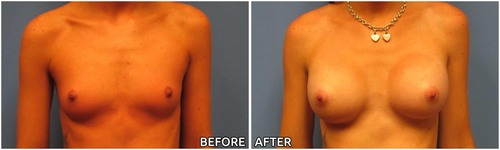 breast-augmentation34