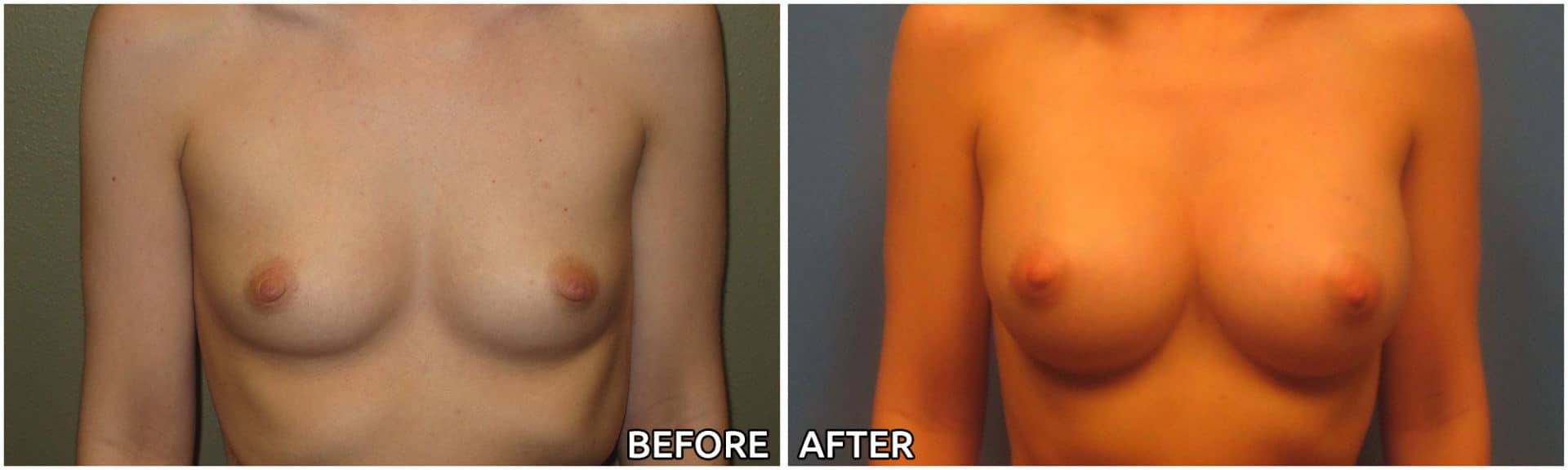 breast-augmentation35