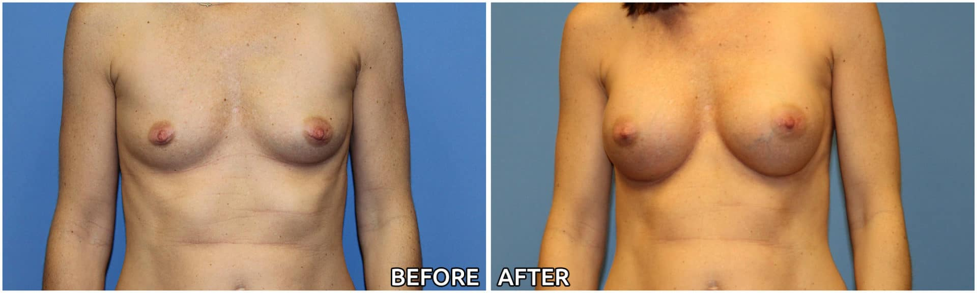 breast-augmentation39