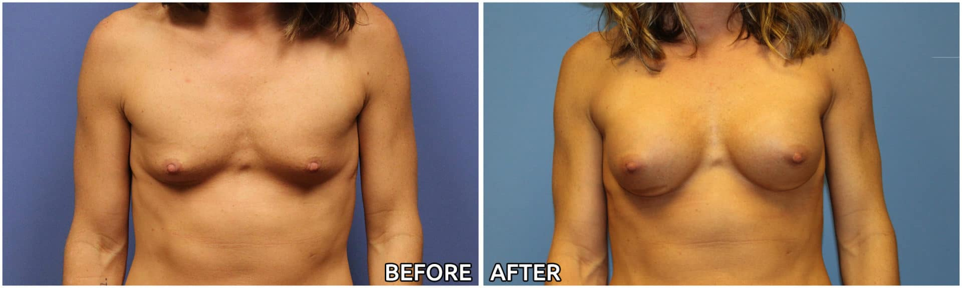 breast-augmentation40