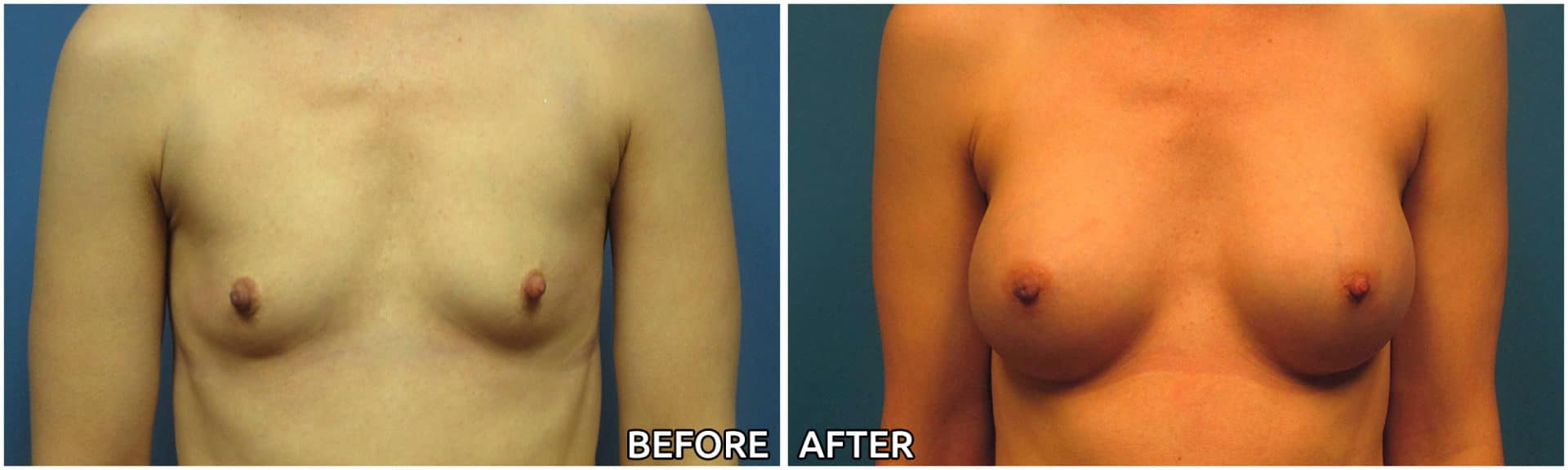 breast-augmentation41