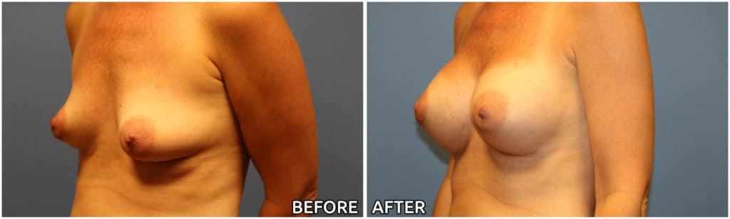 breast-augmentation34