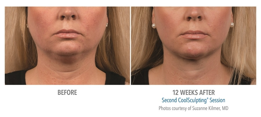CoolSculpting® before and after