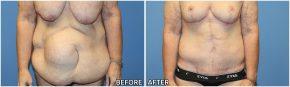 abdominoplasty12