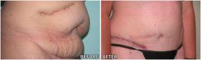 abdominoplasty2