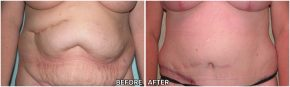 abdominoplasty7