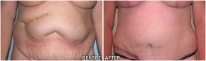 abdominoplasty7