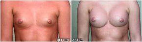 breast-augmentation31