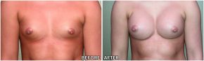 breast-augmentation31