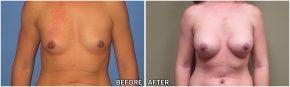 breast-augmentation32