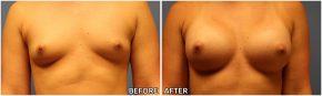 breast-augmentation33