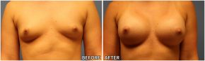 breast-augmentation33