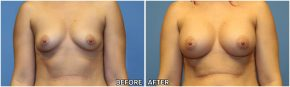 breast-augmentation44