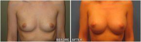 breast-augmentation35