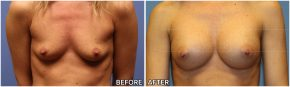 breast-augmentation36
