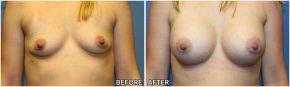 Breast Augmentation #36