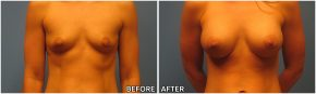 breast-augmentation37