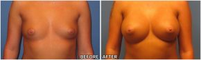 breast-augmentation38