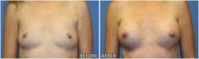 breast-augmentation38