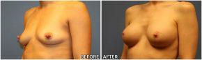 breast-augmentation40