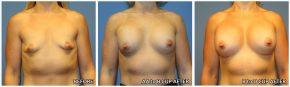breast-augmentation42