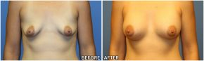 breast-augmentation45