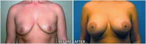 breast-lift3