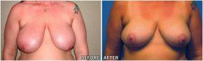 breast-lift4