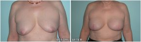 breast-reconstruction7