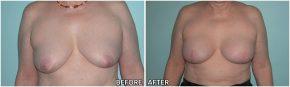 breast-reconstruction7