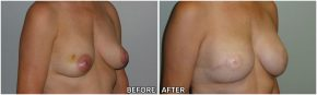 breast-reconstruction9
