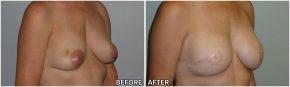 breast-reconstruction9