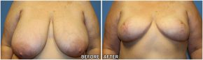 breast-reduction-23
