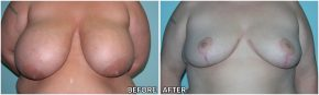 breast-reduction14
