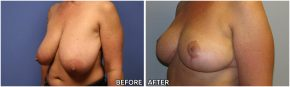 breast-reduction15