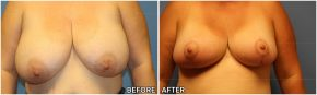 breast-reduction16