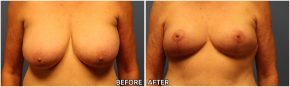 breast-reduction18