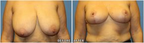 breast-reduction19